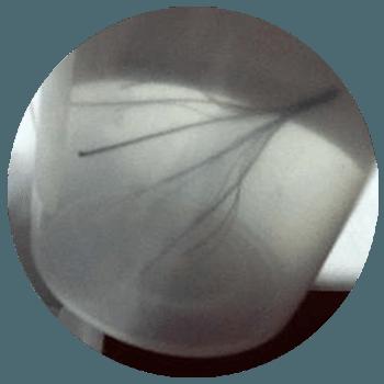 IVC Filter closeup